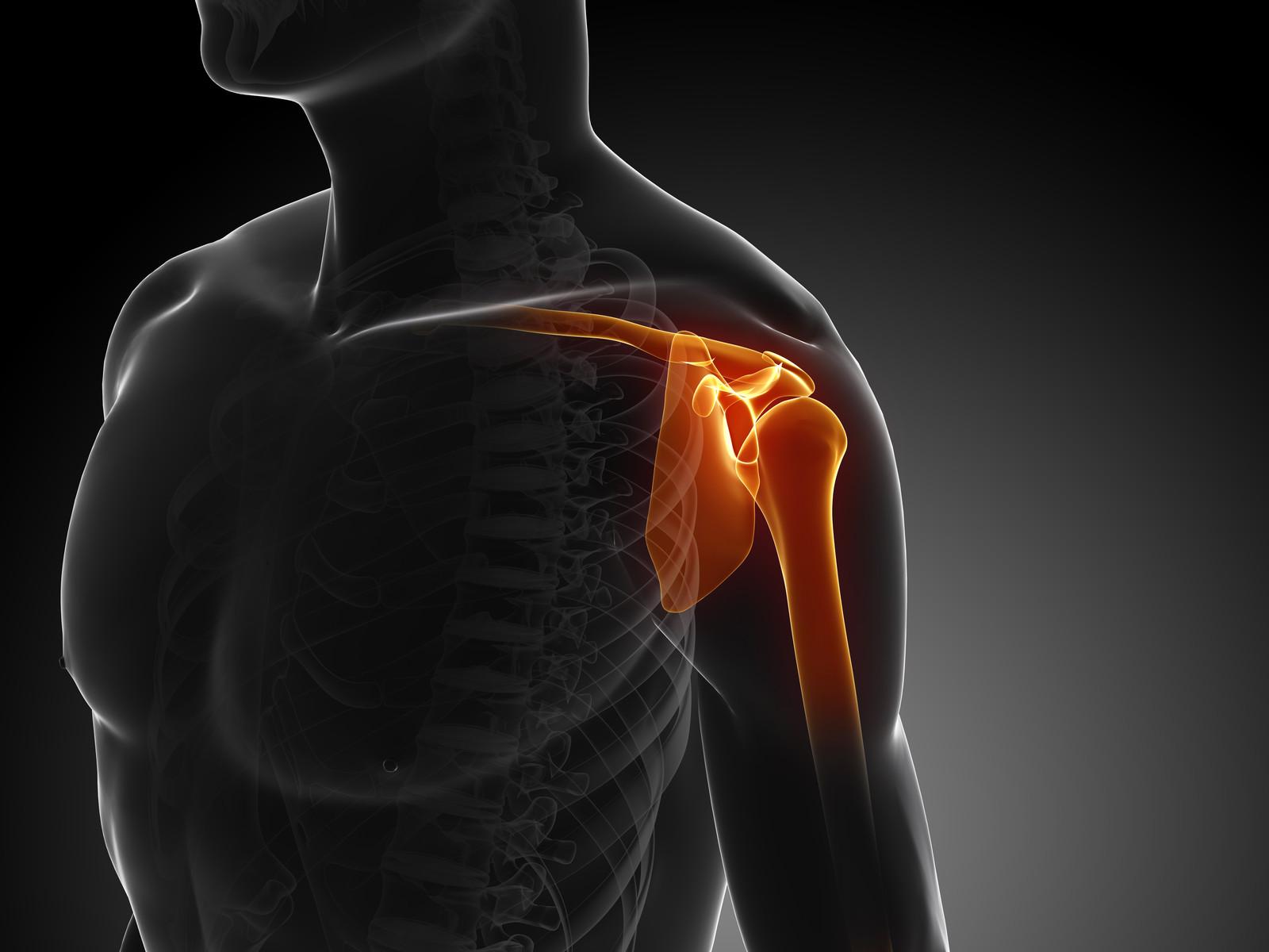 kenőcsök térdízület kötőszalagjainak szakítására a vállízület ízületi gyulladása kezelhető