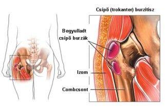 hogyan lehet kezelni a csípőízület bursitist csípő- és térdízületek ízületi kezelése