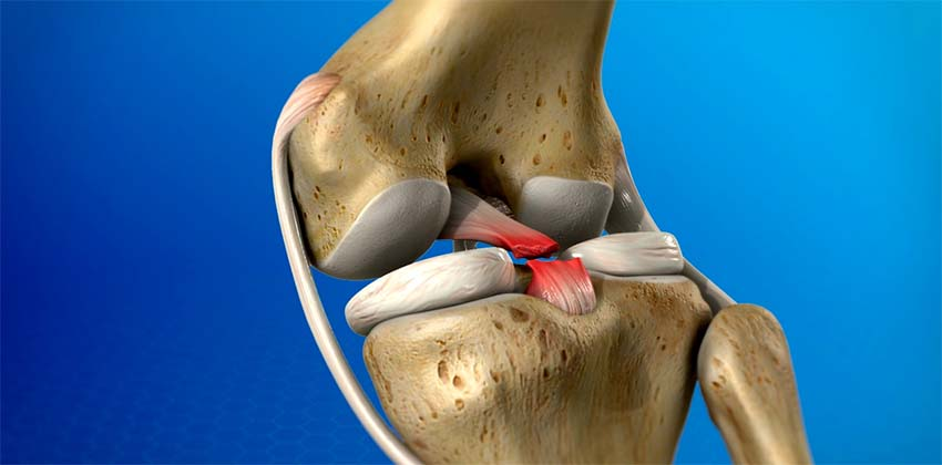 fájdalom a térdízületben a szalagok törése után