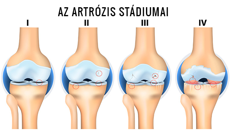 gyógyszer artrózis a csípőízület