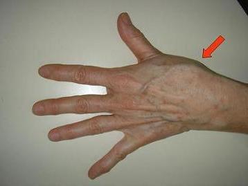 ha a bal kéz ízülete fáj