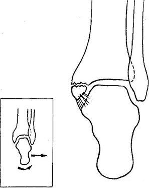 Rehabilitáció a boka törése után - Térd