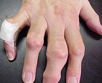 izületi gyulladás kéz ujjain
