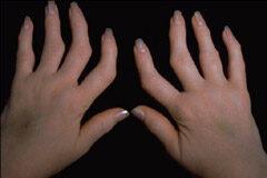 ízületek fájdalma ujjak térd vegyes kötőszöveti betegség tünetei