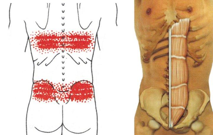 Cervicalis osteochondrosis lemezkiemeléssel - Könyök July