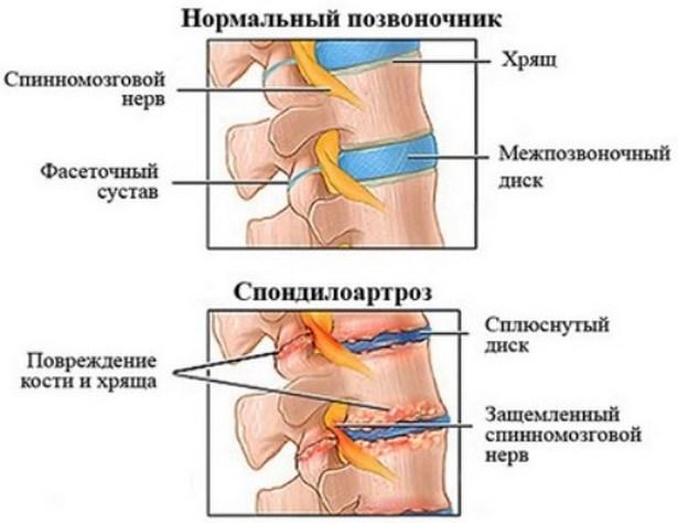 kondroitin és glükozamin intramuszkulárisan