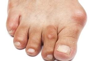 lábujj ízületi betegségek kezelése