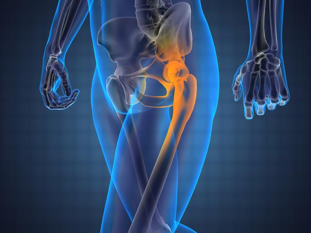 éles fájdalom, amikor a csípőízületben sétál