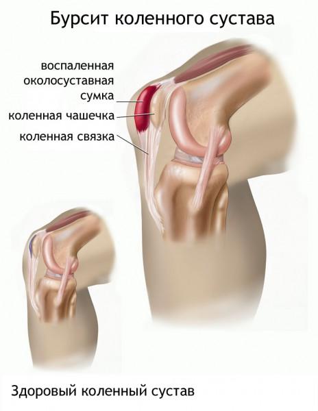 Miért fáj a láb ízületei - okok és kezelés - Diszplázia