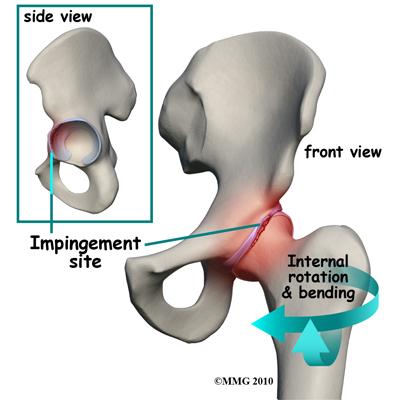 Okok, jellegzetes tünetek és a fájdalom kezelése a csípőízületben, feladás a lábadon