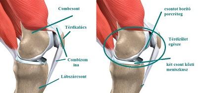 nézze meg a térd izületi gyulladását fájdalom a csípőízületekben mi ez