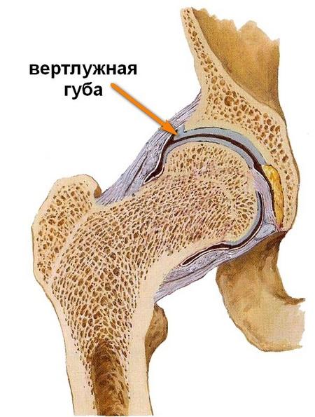 súlyos fájdalmat okozva a csípőízületben)