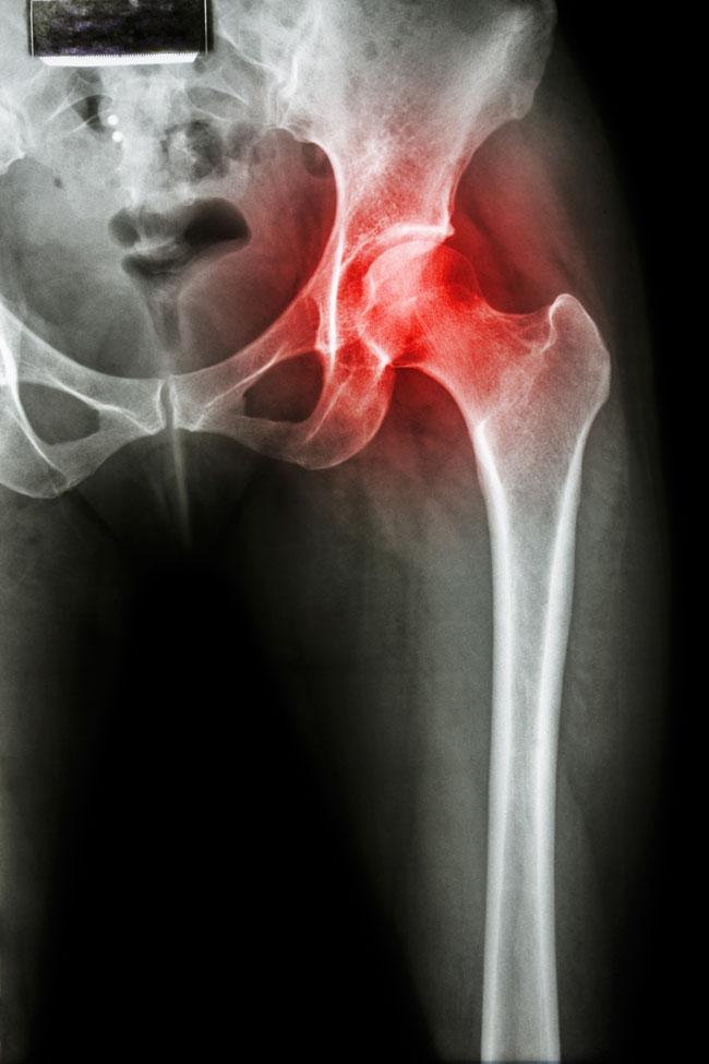 térd- és csípőízület fájdalma