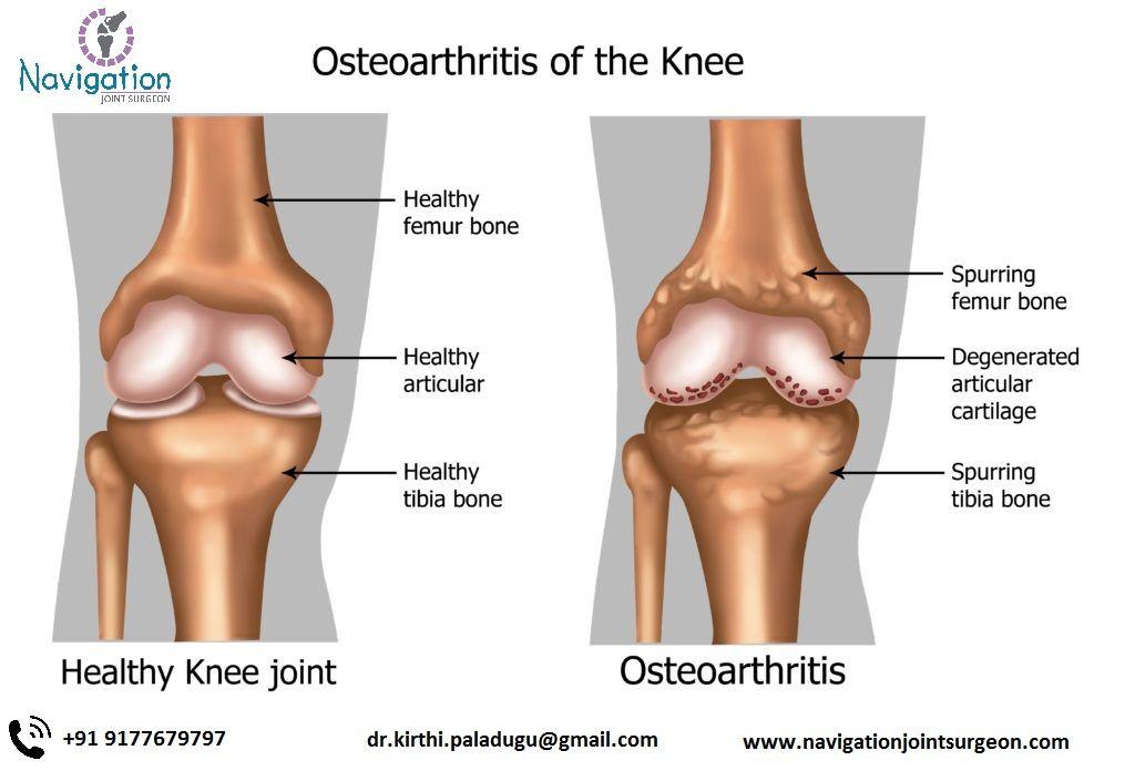 térd arthroso-arthritis)