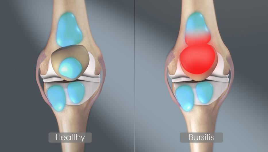 térdfájdalom lapos lábak miatt artrózis tünetei a térdízület 3 fokos kezelése