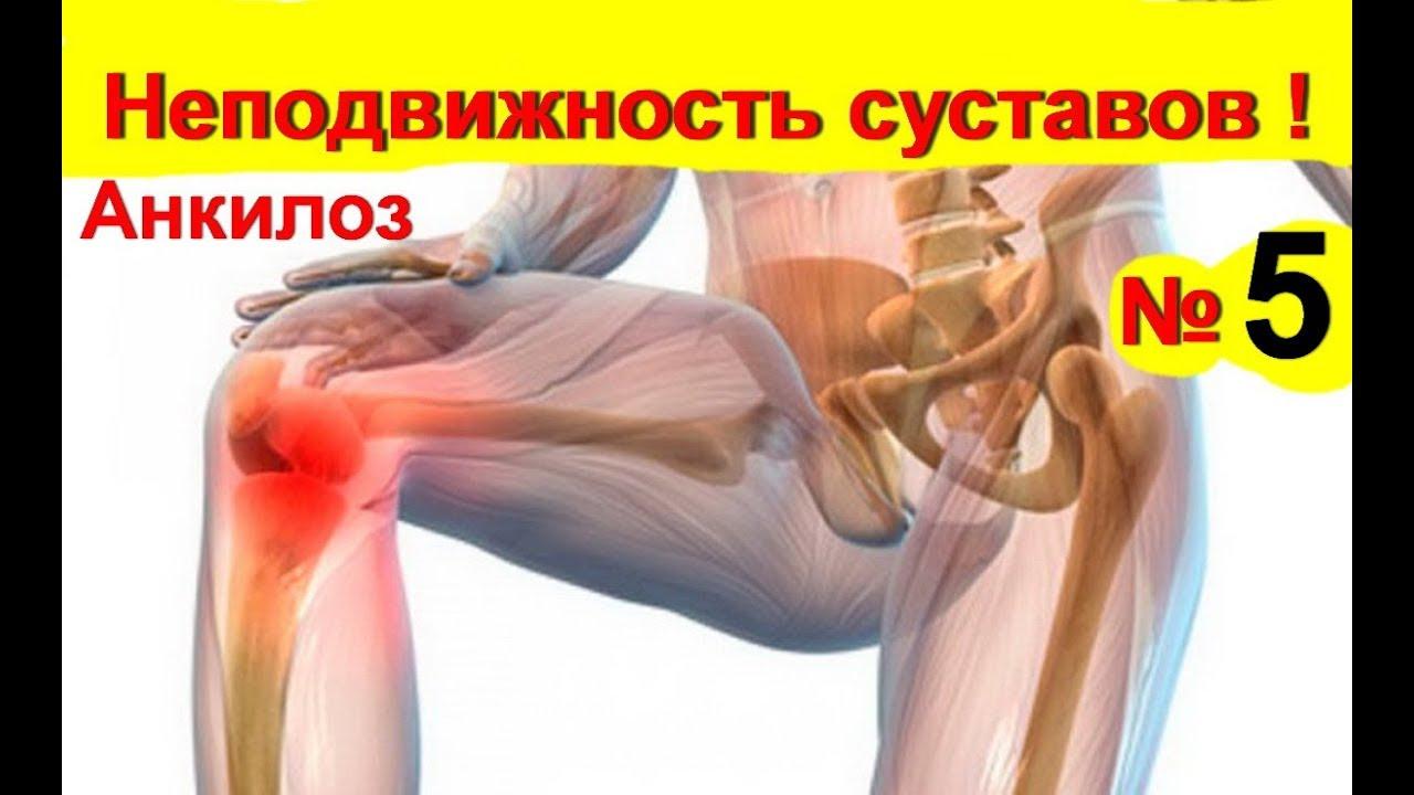 akut ízületi fájdalom, hogyan lehet segíteni tabletták a hüvelykujj ízületeinek gyulladására