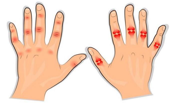 A rheumatoid arthritis - Ujjízületek rheumatoid arthritis