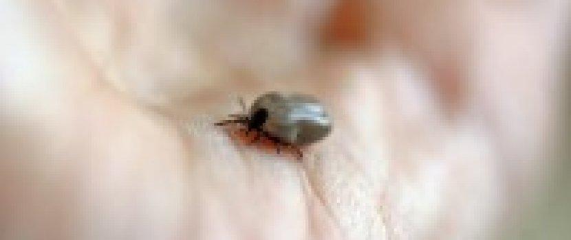 gerincízületek duzzanata fájdalom az ujjakban