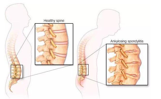 mag 30 az artrózis kezelésében jó balzsam az ízületekhez