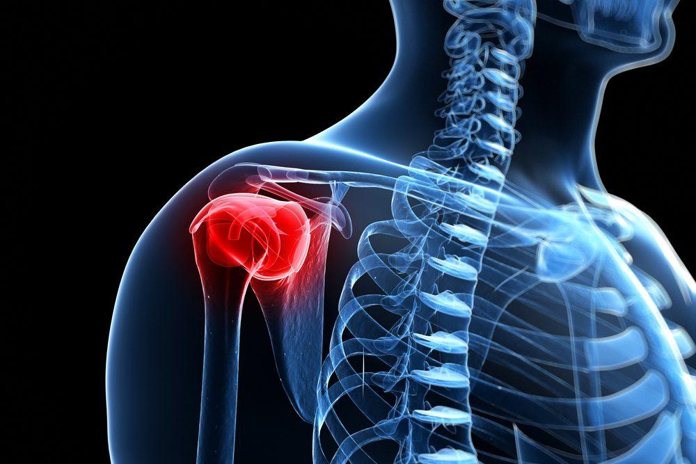 vállízület fájdalom hogyan gyógyítható bölcs osteochondrosis és ízületi betegségek esetén