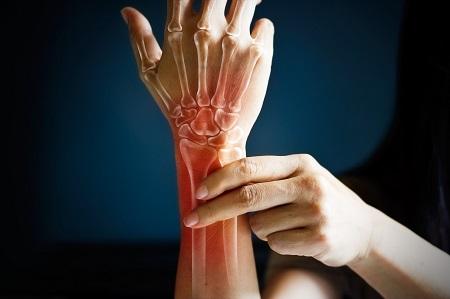ízületi fájdalom bal kezét
